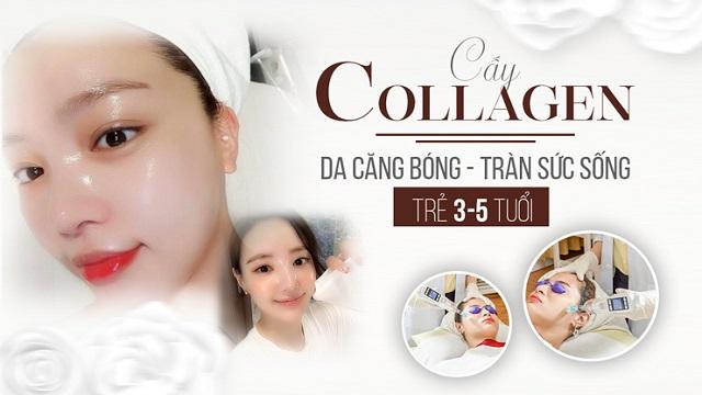 cấy collagen tươi
