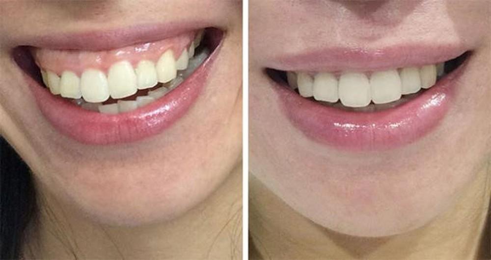 tiêm botox cười hở lợi