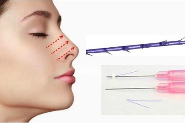 quy trình filler mũi